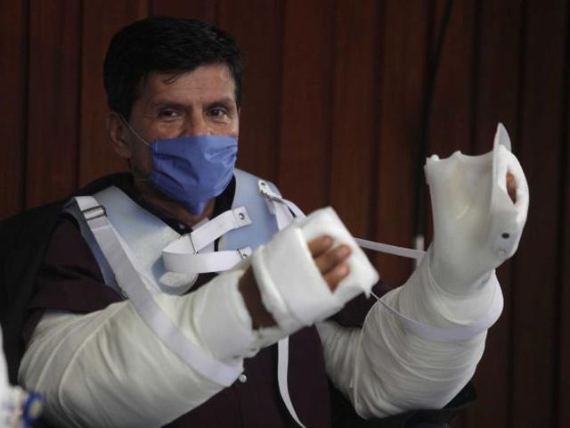 México realizó el primer trasplante de brazos en América Latina